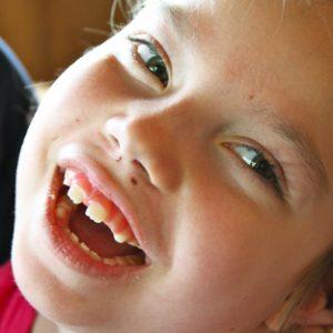 Kids Unlimited kinderen meervoudige beperking